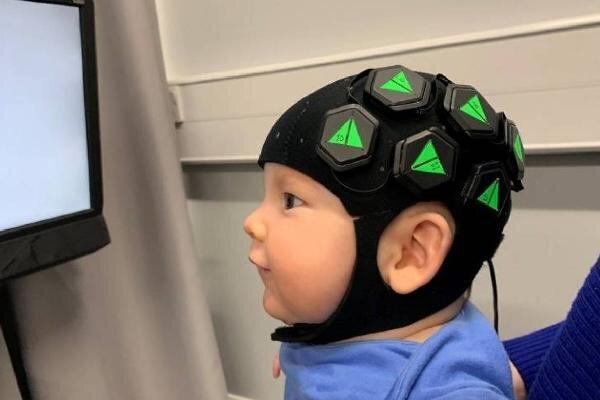 ابداع فناوری جدید تصویربرداری از فعالیت مغز بچه ها